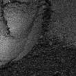 Gyöngyház effektpigment - szivárvány sorozat - MRB-AB25100